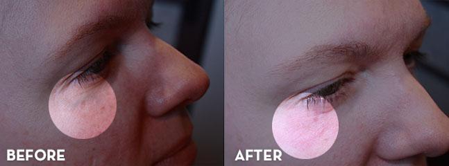 blue veins on face treatment