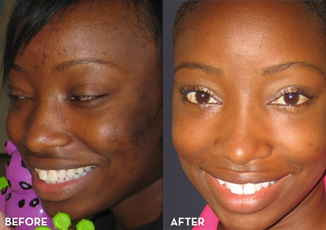 Before and After photo VIpeel Denver Colorado