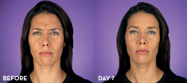 botox-anastasia-beforeday7