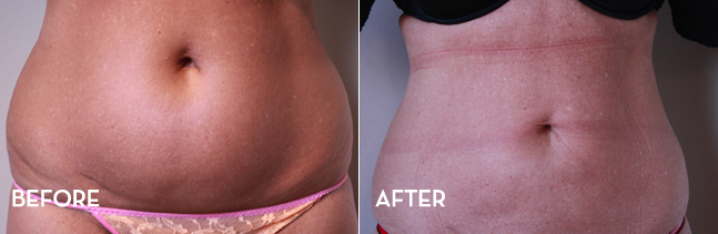 Liposuction Front Image Results