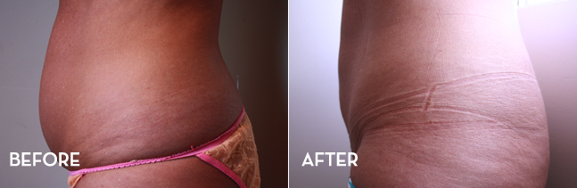 Liposuction side results