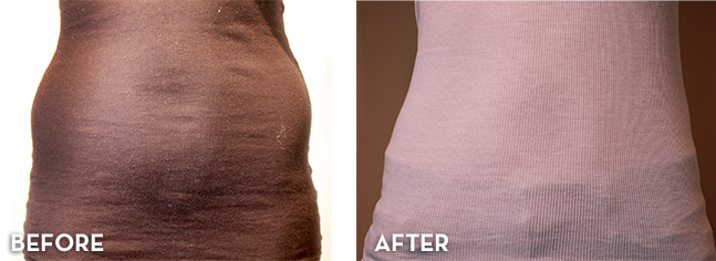 Liposuction results with TickleLipo