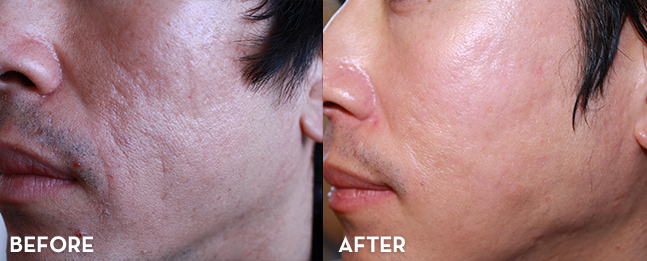 Acne Treatment Results with MixTo CO2