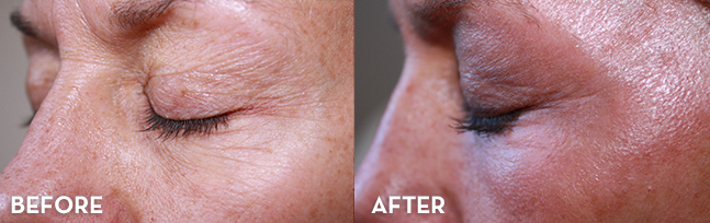 MiXto Laser Resurfacing Results