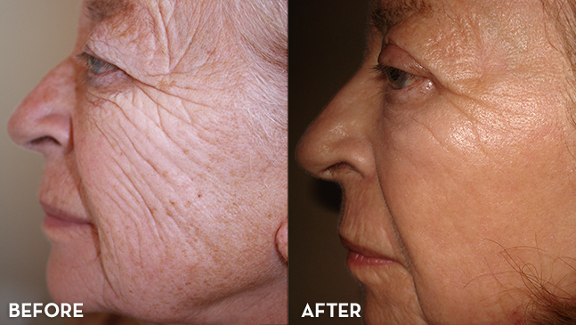 Wrinkle Treatment Results with MixTo CO2 Fractional Laser