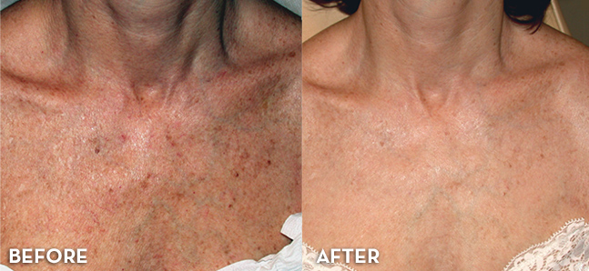 Before and After: Chest Rejuvenation with Photofacial treatment