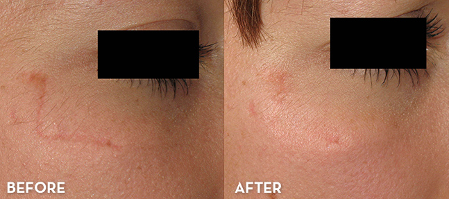 Scar Treatment Results