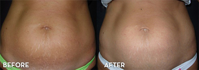 Before and After - Stretch Marks