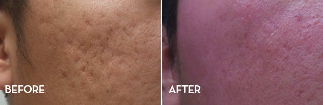 acne scar treatment with MiXto laser fractional CO2