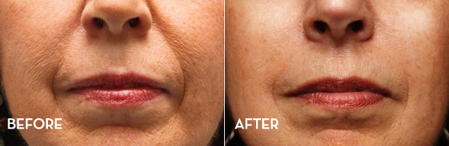 Improve your skin SkinPen - at La Fontaine Aesthetics