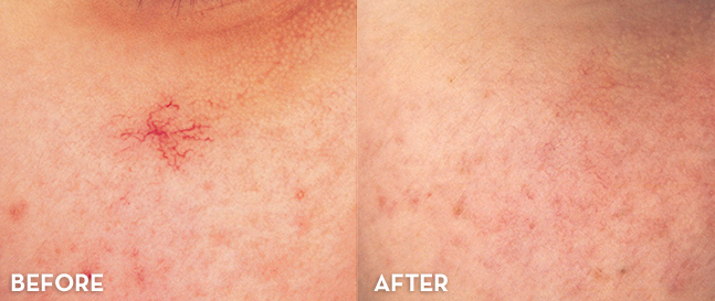 Blue Vein Treatment Results