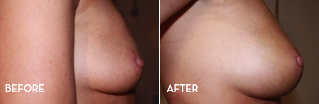 Before and after fat transfer breast enhancement