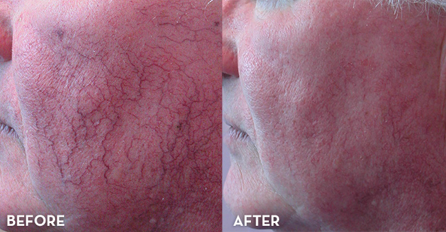 Vein Treatment on Cheeks
