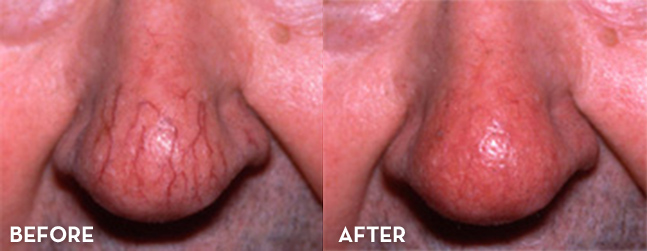 Facial Vein Treatment Results