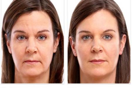 Voluma - Before & After