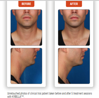 Before and after Kybella chin treatment for male