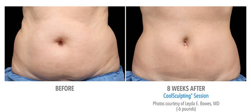CoolSculpting before and after treatment, woman's abdomen