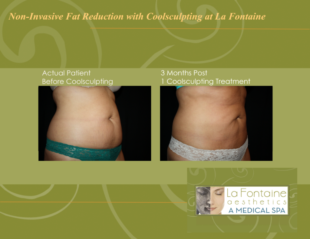 coolsculpting denver, best coolsculpting la fontaine, coolsculpting cherry creek