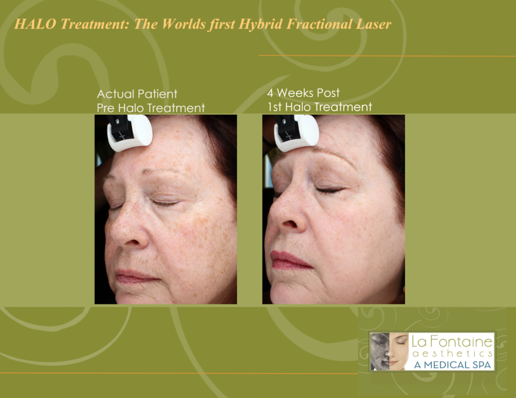 Halo laser in Colorado, Halo Dual laser Denver, CO, treatment for damaged skin in Denver