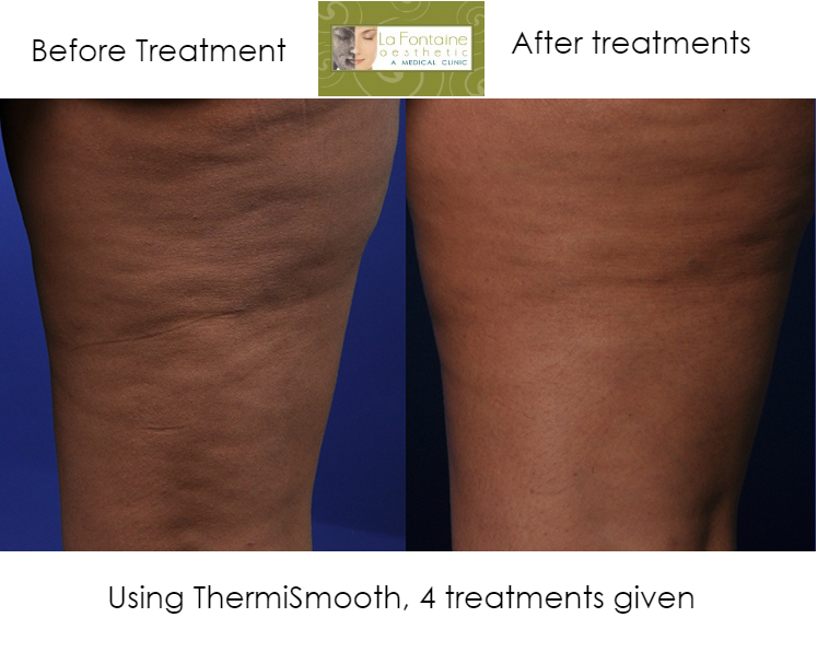 Thermismooth Denver Colorado, how to get rid of cellulite, ThermiSmooth for cellulite denver colorado,