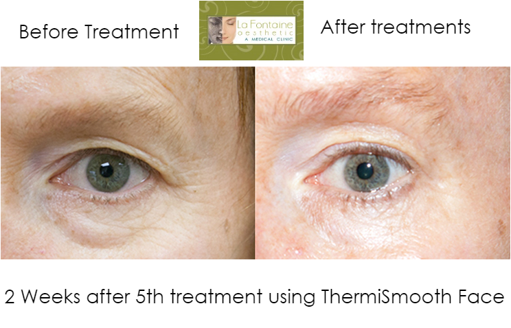 Thermismooth Lakewood Colorado, thermismooth littleton colorado, facial tighting colorado