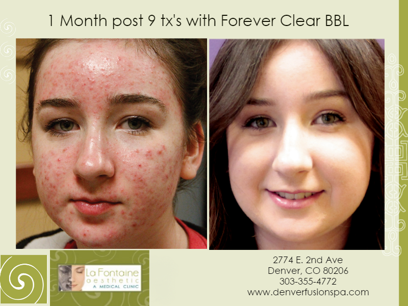 forever clear bbl acne treatment denver colorado, forever clear bbl cherry creek,