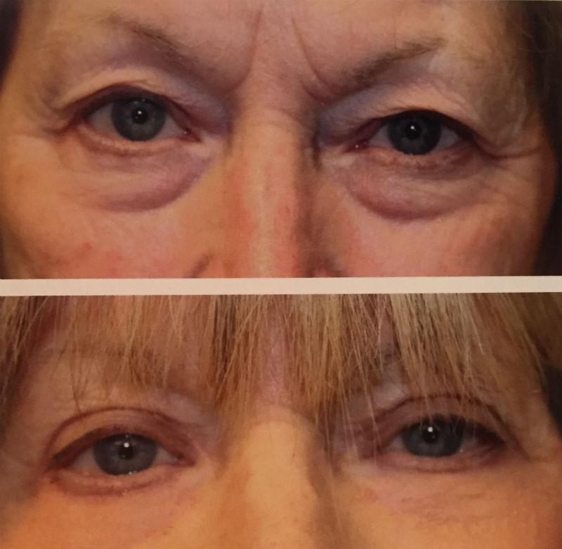 j plasma resurfacing denver colorado, j plasma non surgical face lift denver colorado
