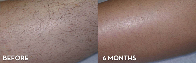 Laser Hair Removal Before And After La Fontaine Aesthetics